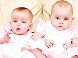 'Karnım ağrıyor' dedi ikiz çocuk doğurdu.14071